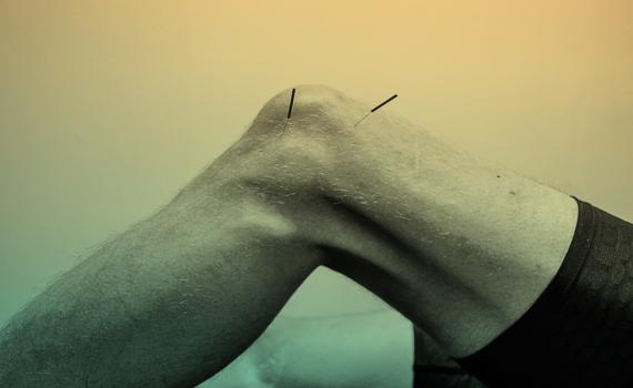 Akupunktur och dry needling som nålbehandling hos Karlbergs Naprapati
